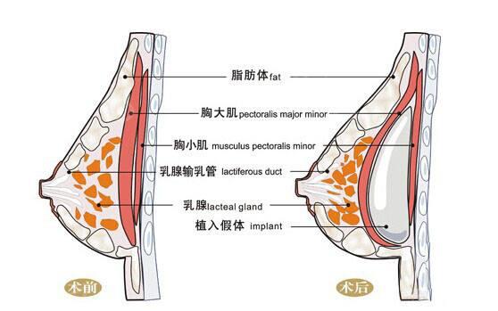 做自体脂肪丰胸填充胸部注射越多越好吗