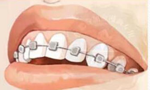 上海一般带牙套要带多久才能摘