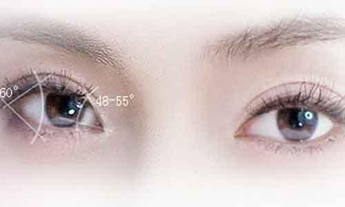 做韩式双眼皮多少钱啊