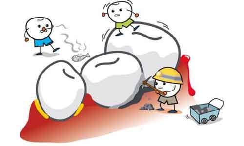 上海美莱:带牙套的好处和坏处有哪些
