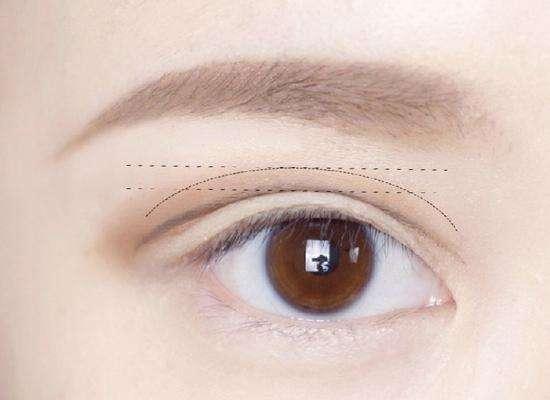 割双眼皮价格上海需要多少钱