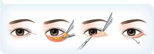去眼袋手术上海哪家医院效果佳