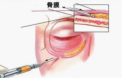 上海玻尿酸填充泪沟效果怎么样