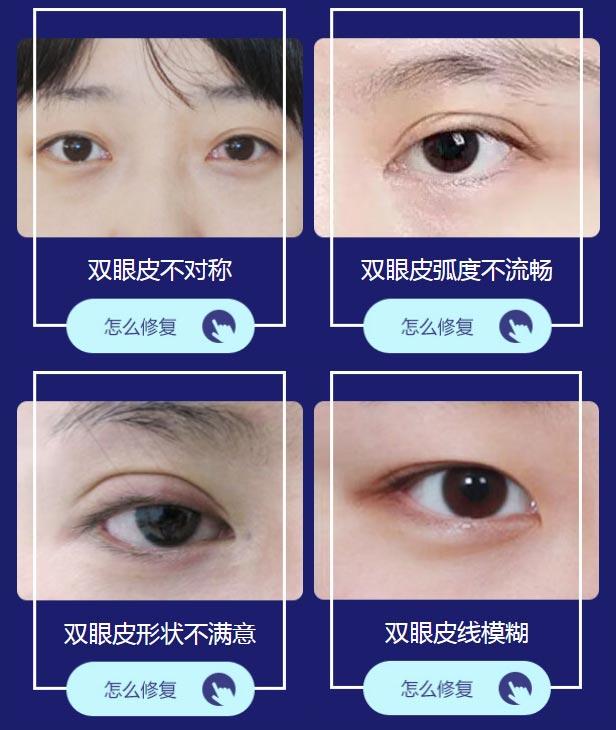双眼皮修复哪家做得好