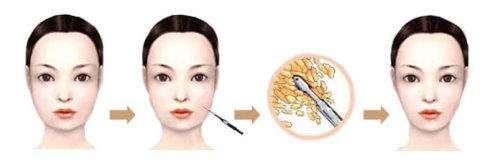 上海做面部吸脂手术价格多少钱