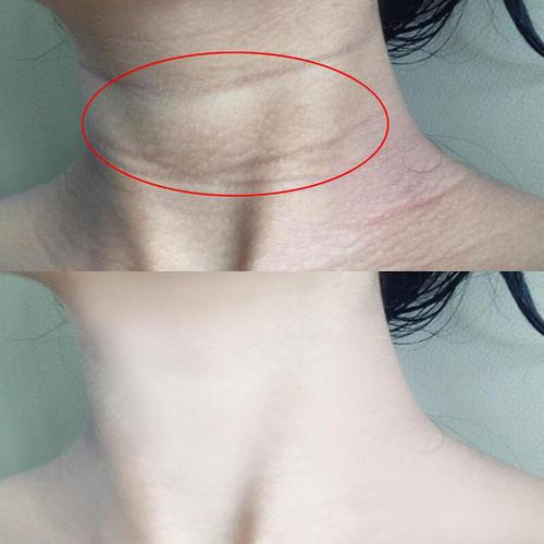 颈纹很深怎么办,怎么来消除