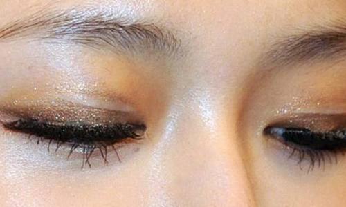 """美莱医学祛黑眼圈会有""""伤口""""吗?"""