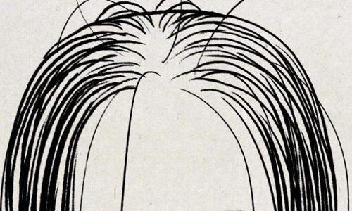 美莱植发的费用是多少,怎么计算植发费用