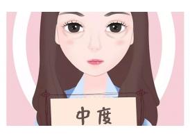 上海美莱,怎么消除泪沟