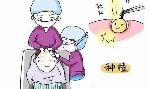 上海发际线植发多少钱啊