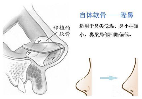 上海做自体肋骨隆鼻多少钱