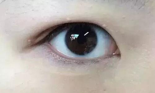 肿泡眼做埋线双眼皮可以吗