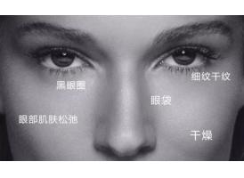 上海去除黑眼圈需要多少钱
