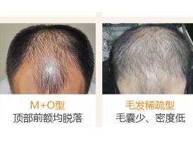 上海植发多久会有效果