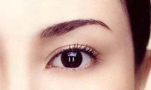 上海微创双眼皮是永久的吗