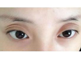 三眼皮怎么办,上海美莱告诉你是上眼睑凹陷惹的祸
