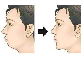 上海鼻头缩小手术过程是怎么样的