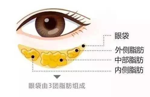 上海激光祛眼袋效果好不好