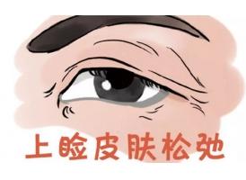 上海上睑下垂该怎么办