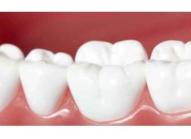 上海牙齿美容冠要多少钱一颗