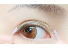 上海双眼皮修复是怎么做的