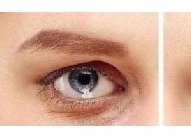 激光祛眼袋效果好吗