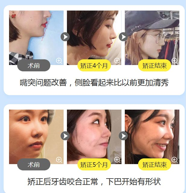 上海美莱口腔做牙齿矫正要拔牙吗