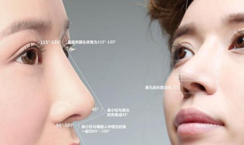 上海做鼻综合大概多少钱,差距是多少