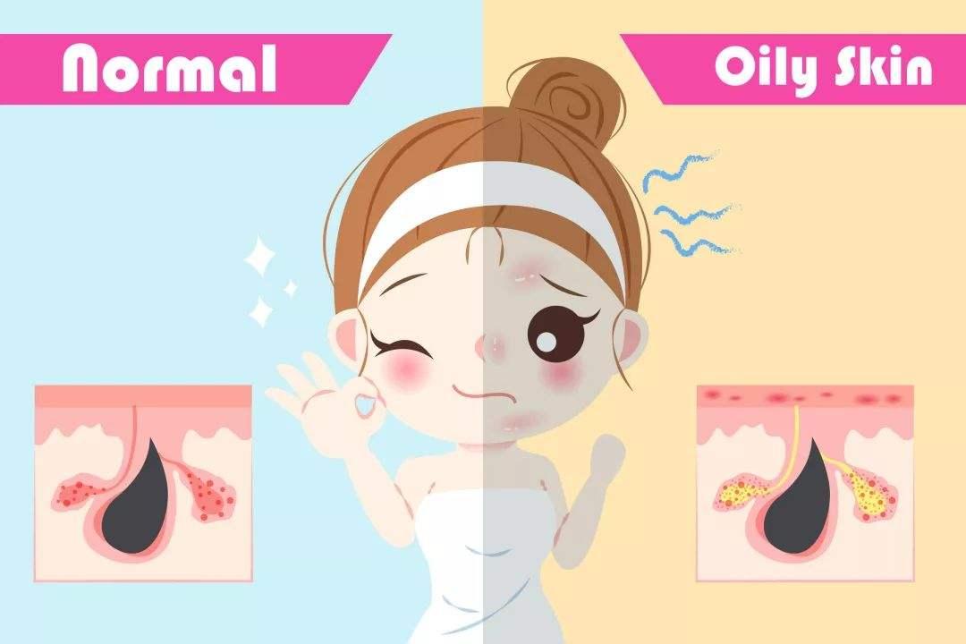 上海皮肤美容医院做黑头怎么去除更有效