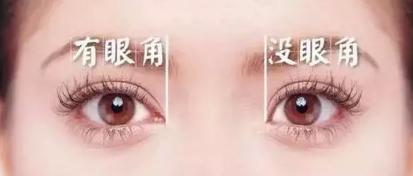 上海开眼角失败怎么修复