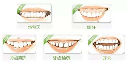 上海牙齿矫正美莱做痛不痛