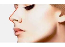 鼻子整形需要多少钱在上海