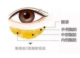 上海去眼袋医院美莱好不好