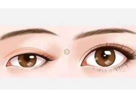开内眼角和开外眼角的区别是什么