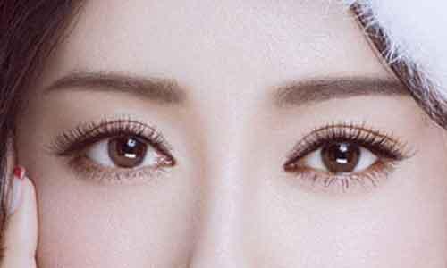 上海双眼皮手术几天拆线
