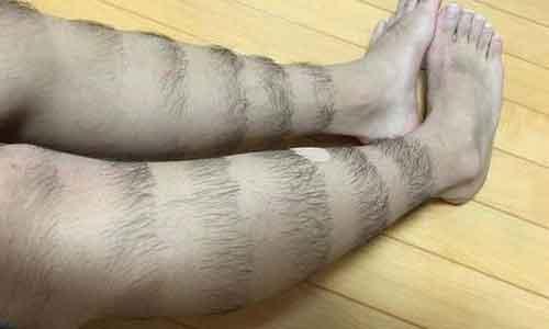 上海脱腿毛激光需要做几次