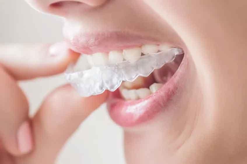上海隐形矫正牙齿多少钱