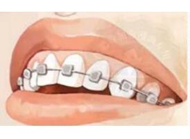 上海矫正牙齿多少钱美莱