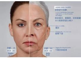 美莱线雕除皱:衰老、松弛和凹陷通通为您解决