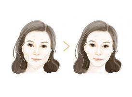 上海注射瘦脸美莱效果好不好
