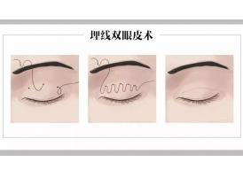 上海做埋线双眼皮手术要多少钱