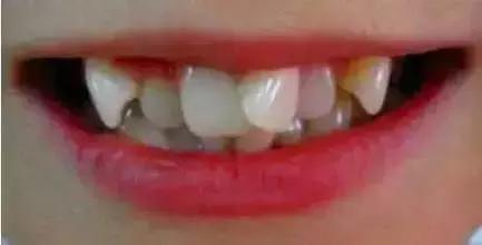 牙齿矫正暴牙上海口腔医院哪家做得好