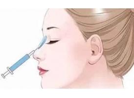 注射隆鼻多少钱?