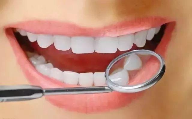 上海一般做整牙价格要多少钱
