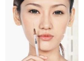 上海注射玻尿酸乔雅登后注意事项有哪些