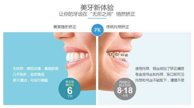 隐形牙齿矫正最适合的年龄是什么年纪