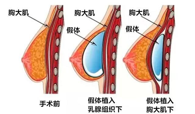 上海做整形隆胸手术注意事项有哪些