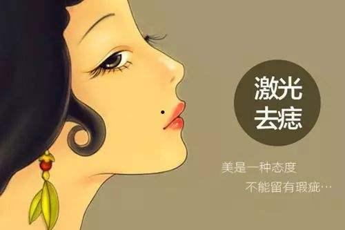 上海祛痣,做激光点痣多少钱一颗