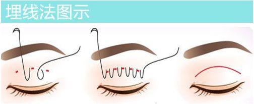 一般做埋线双眼皮能保持多久