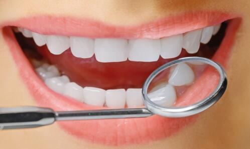 上海口腔医院做洗牙后的注意事项